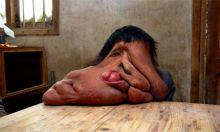 يعاني من ورم يزن 23 كيلو ... صاحب اغرب وجه في العالم ما زال يتعشم في العلاج