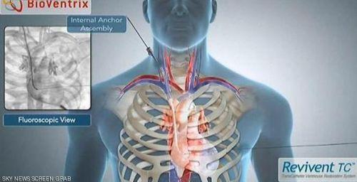 جراحة للقلب من دون شق الصدر