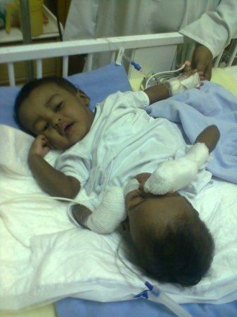 وفاة التوأم السوداني السنجاوي ( محمود )