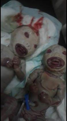 مستشفي امدرماني شهير يشهد اغرب حالة ولادة توأم في شكل ألعاب صناعية